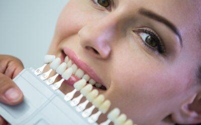 Como escolher o melhor tipo de clareamento dental